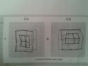 Hess test 1