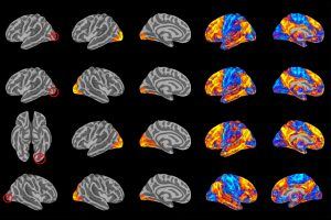 Brain imaging reveals that poor communication between four regions of the visual cortex that help process what we see is correlated with greater risk of mental illness. Credit: Maxwell Elliott https://medicalxpress.com/news/2018-05-breakdown-brain-visual-networks-linked.html